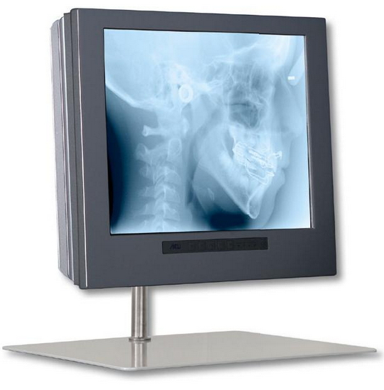 Monitor MD 1709