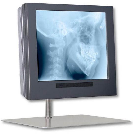 Monitor MD 1709